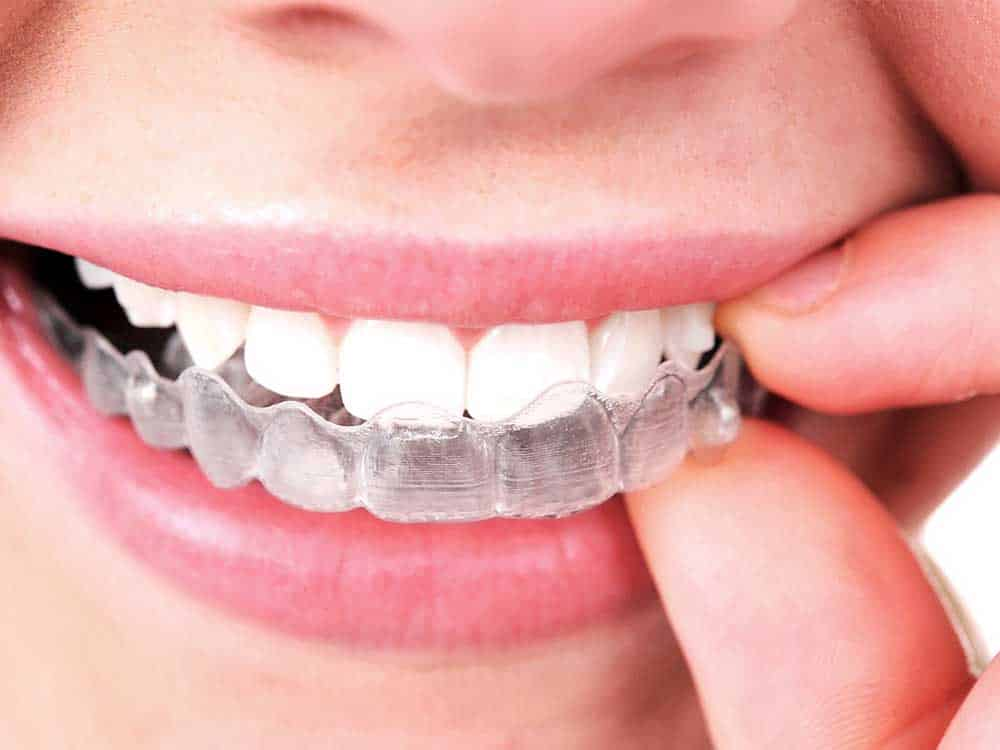 braces and invisalign comparison
