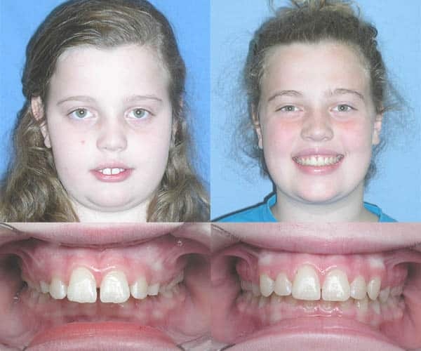 braces before and after overbite child