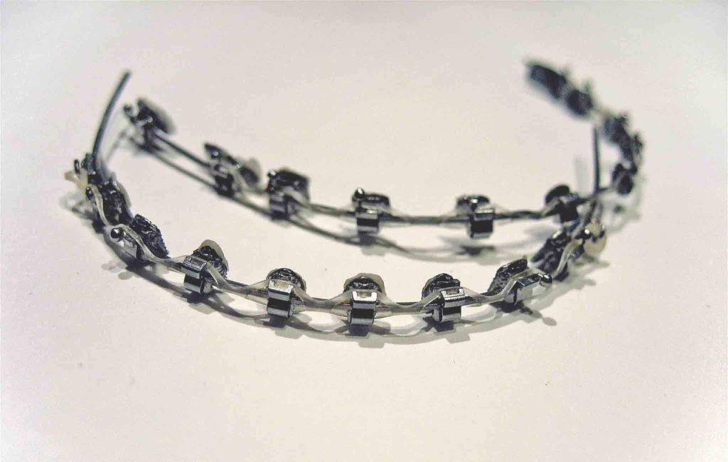 braces vs retainers
