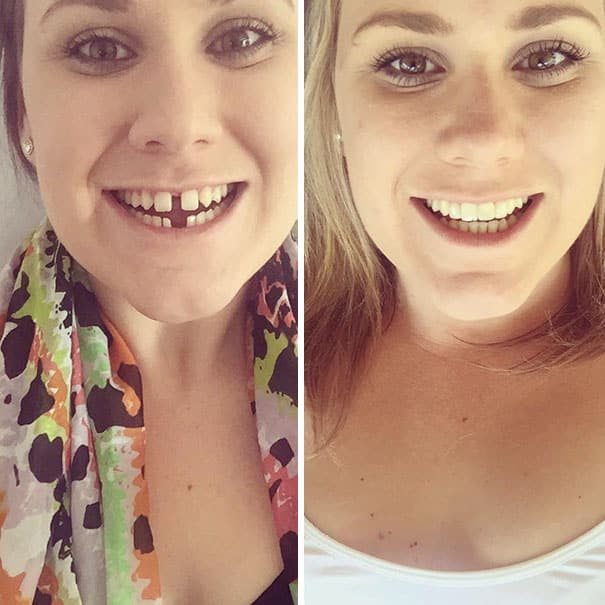 can braces fix tooth gap