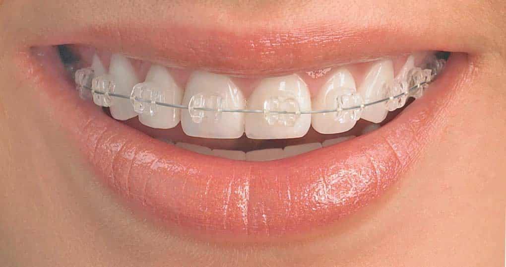ceramic braces price