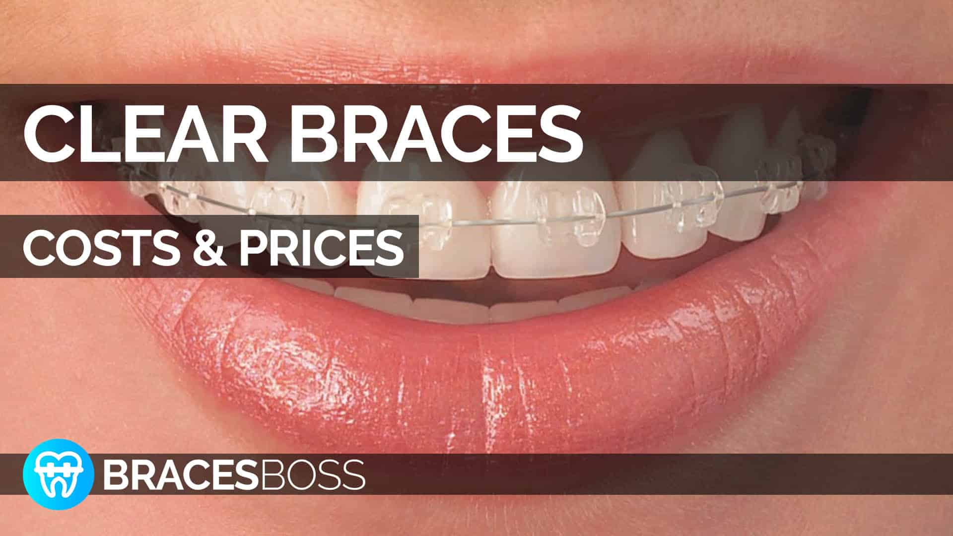 clear braces cost