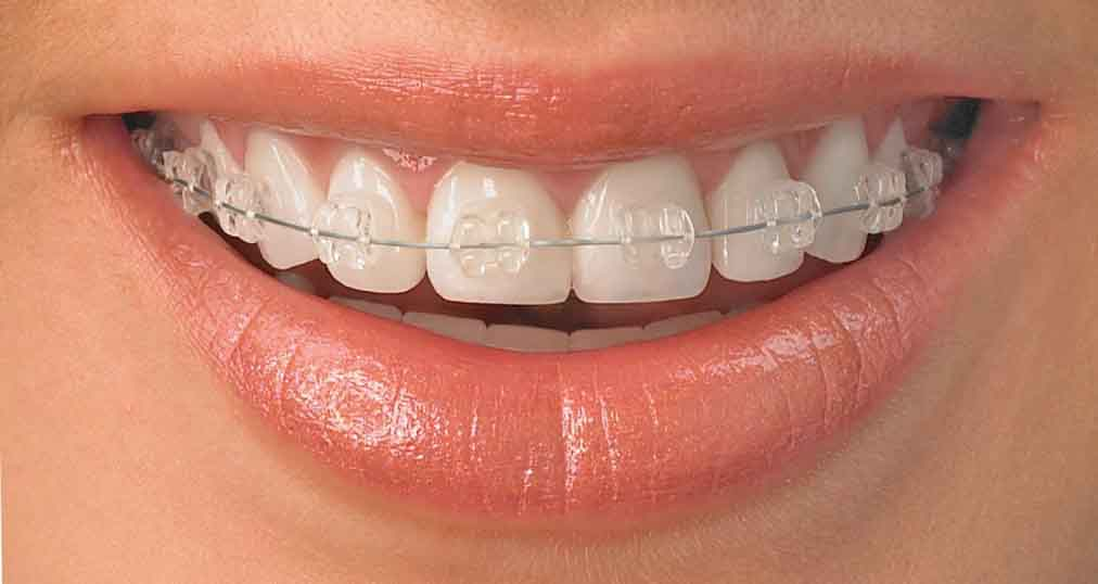 difference between braces and invisalign